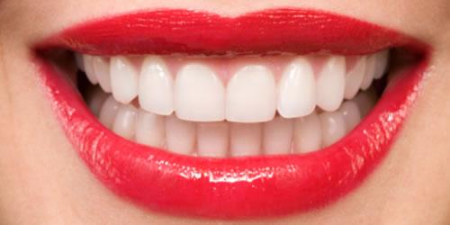 Avoir de belles dents blanches